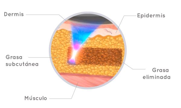 como funciona el hifu corporal