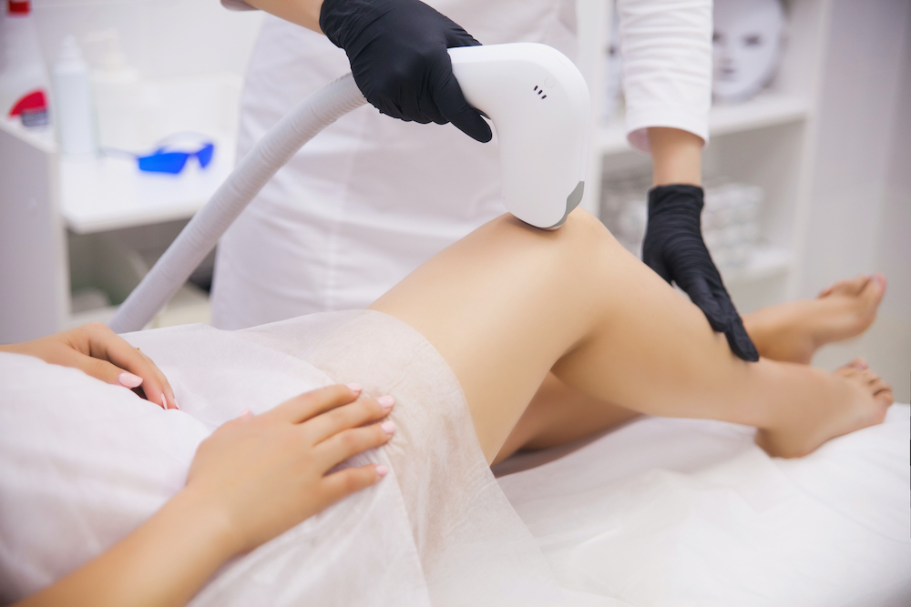 beneficios de la depilación láser